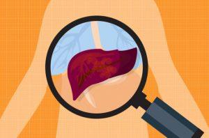 肝癌化療病人要注重護肝